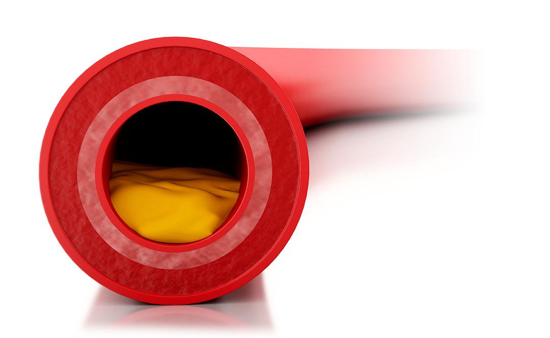 colesterolo-trigliceridi-integratori